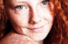 Com afecta el melanoma