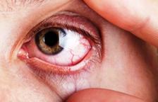 Tractament del glaucoma