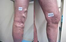 Tractar sense cirurgia les varius
