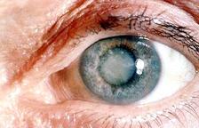 La cataracta secundària