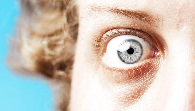 L'oftalmopatia tiroïdal és una afectació de l'òrbita associada a una malaltia autoimmune de la glàndula tiroide.