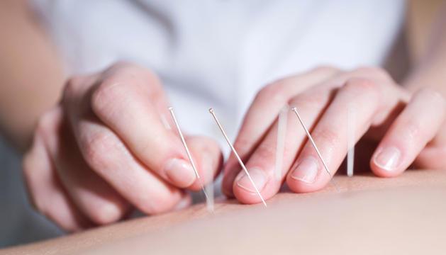 L'acupuntura millora la defensa immunològica de l'organisme.