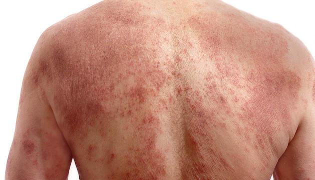 La psoriasi i la dermatitis atòpica es poden tractar amb fototeràpia.
