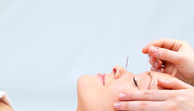 L'acupuntura és una pràctica de la medicina oriental.