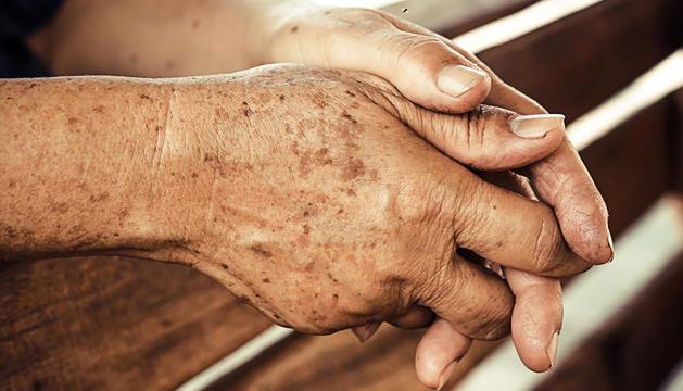 Per exposicions perllongades al sol apareixen taques marrons a la pell.