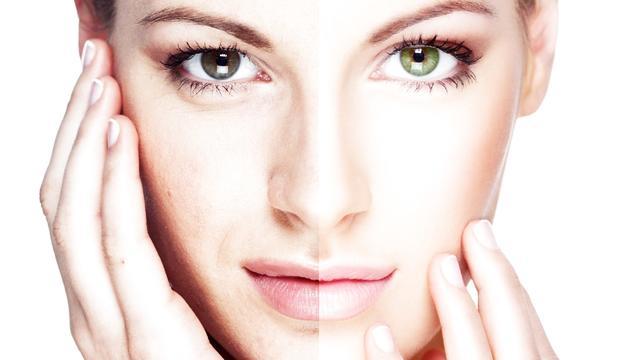 Ús del plasma ric en plaquetes en tractaments de bellesa.
