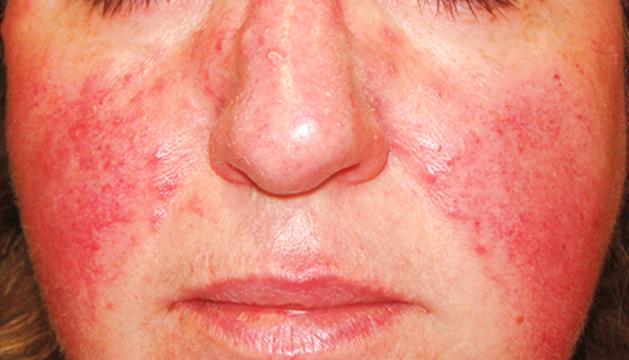 La dilatació de les venes superficials provoca la vermellor de la pell