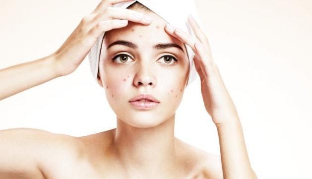 Com que els anticonceptius sónantiandrogènics, tenen un efecte beneficiós sobre l'acne