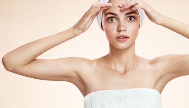 L'acne és un trastorn que afecta l'autoestima