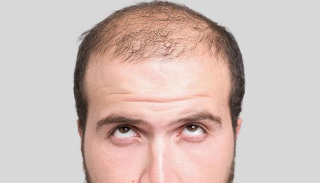 La caiguda de cabell hereditària afecta 7 de cada 10 homes
