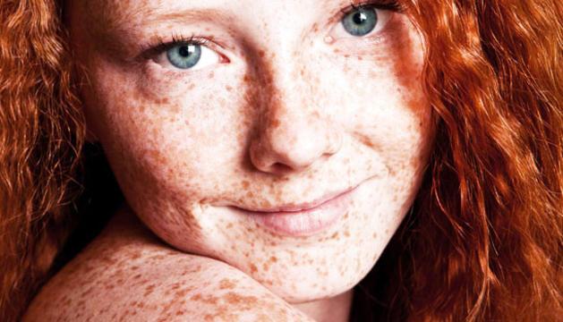 Les persones que solen ser més sensibles a patir un melanoma tenen la pell clara, els ulls clars i són pèl-rojos