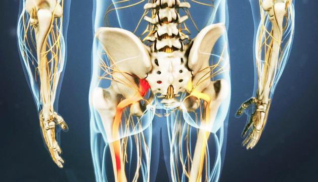És una malaltia bastant freqüent avui, potser perquè no  cuidem prou la nostra esquena