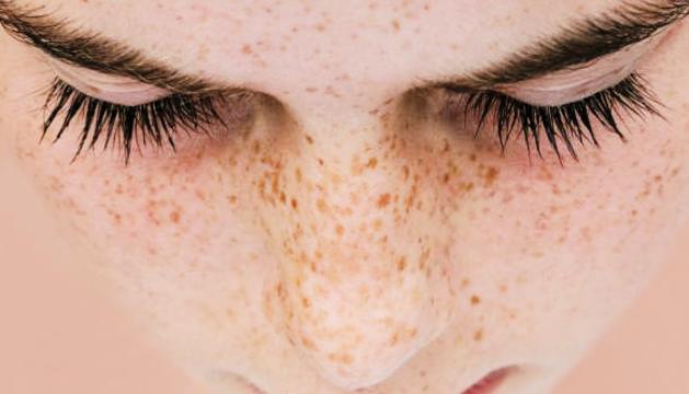 Les taques solars solen aparèixer a la cara, mans i cap