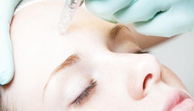 Regeneració facial amb factors de creixement