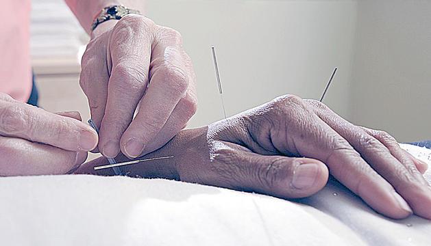 La inserció de les agulles al cos produeix endorfina