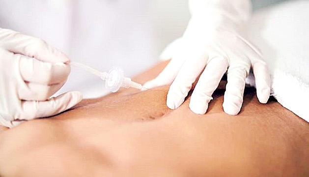 La carboxiteràpia en medicina estètica